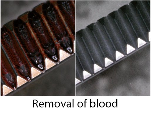 Removal of blood